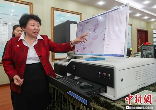 """海归细胞病理学专家孙小蓉博士介绍人工智能宫颈癌诊断机器人""""Landing""""的工作原理。 中新社记者 张畅 摄"""